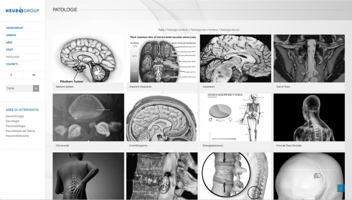 Website Neurogroup - Neurochirurgia, Neurologia, Neuroradiologia, Neuroterapia del Dolore e Neuroriabilitazione